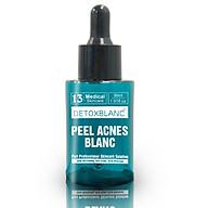 Kem dưỡng Peel Acnes Detox BlanC (30ml) - Ngăn Ngừa Mụn, Làm Mờ Sẹo, Se Khít Lỗ Chân Lông thumbnail