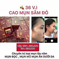 CAO MỤN SÂM ĐỎ 15Gr b