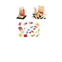 Mô hình phẫu thuật  Răng