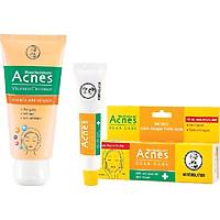 Bộ sản phẩm sáng thâm mờ sẹo Acnes (Kem rửa mặt Acnes Vitamin 100g + Gel mờ thâm sẹo Acnes 12g) + Tặng túi vải xinh xắn Acnes