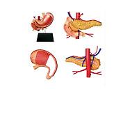 Mô hình phẫu thuật  Dạ dày