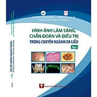 Hình ảnh Lâm sàng chẩn đoán và điều trị trong chuyên ngành Da liễu(Tập 1)