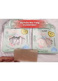 mi-luoi-keli-allergy-p118333975-1
