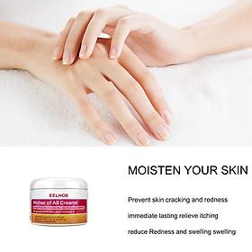 Moisturizing  Cream Skin Psoriasis Dermatitis Eczema Ointment Treatment Cream Skin Care Cream