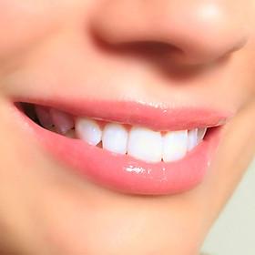 Combo gói 2 lần Tẩy Trắng Răng bằng Công Nghệ Plasma Laser - Nha khoa Gia Hân