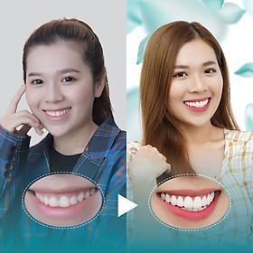 Điều trị dứt điểm hở lợi tại Nha Khoa Thẩm Mỹ Quốc Tế San Dentist
