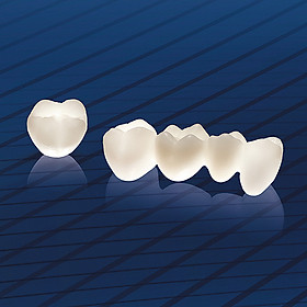 Bọc 1 răng sứ Cercon HT tại Nha Khoa Gia Hân