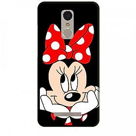 Ốp lưng dành cho điện thoại XIAOMI NOTE 3 Mickey Làm Duyên
