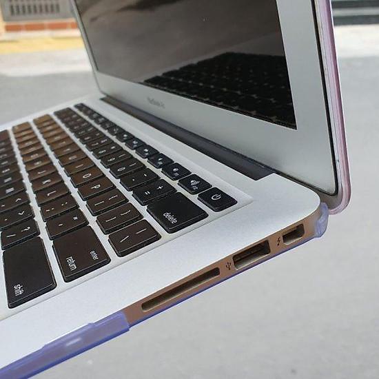 Case ,Ốp Macbook In Hình Hug A Pug (tặng kèm nút chống bụi + chống gãy dây sạc)