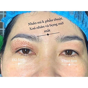 may-nhan-mi-p111445597-5