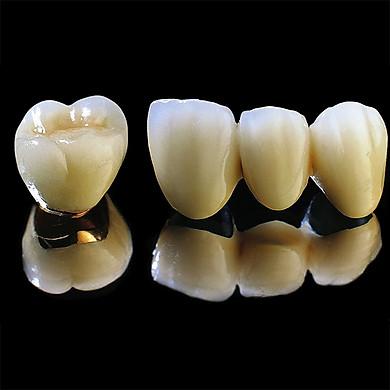 Bọc 1 răng sứ Titanium tại Nha Khoa Gia Hân