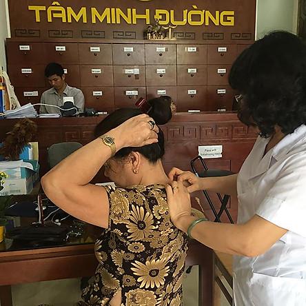 Gói 7 Buổi Vật Lý Trị Liệu Trị Hội Chứng Đau Cổ Vai Gáy (Gói Cơ Bản) Tại Phòng Chẩn Y Học Cổ Truyền Tâm Minh Đường