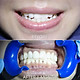 Niềng Răng Siêu Tốc Trong 6 Tháng tại Navii Dental Care