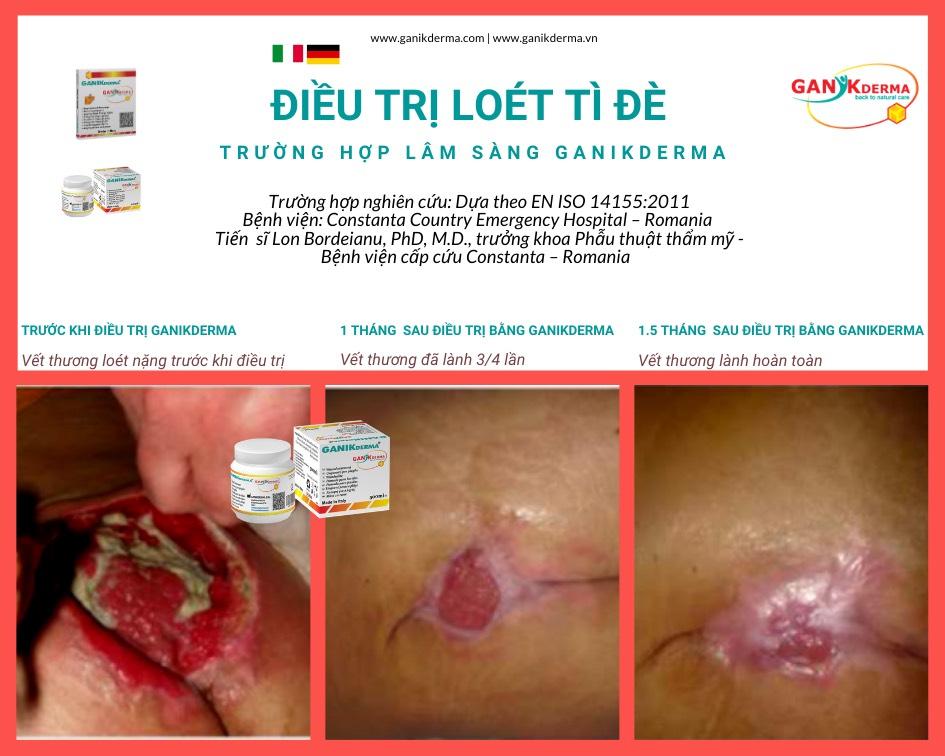 Băng Gạc Tẩm Kem Mỡ Gỗ Sồi GANIKderma 10*10 cm nhập khẩu Ý Phòng Nhiễm trùng, liền vết thương, tránh sẹo chống dính