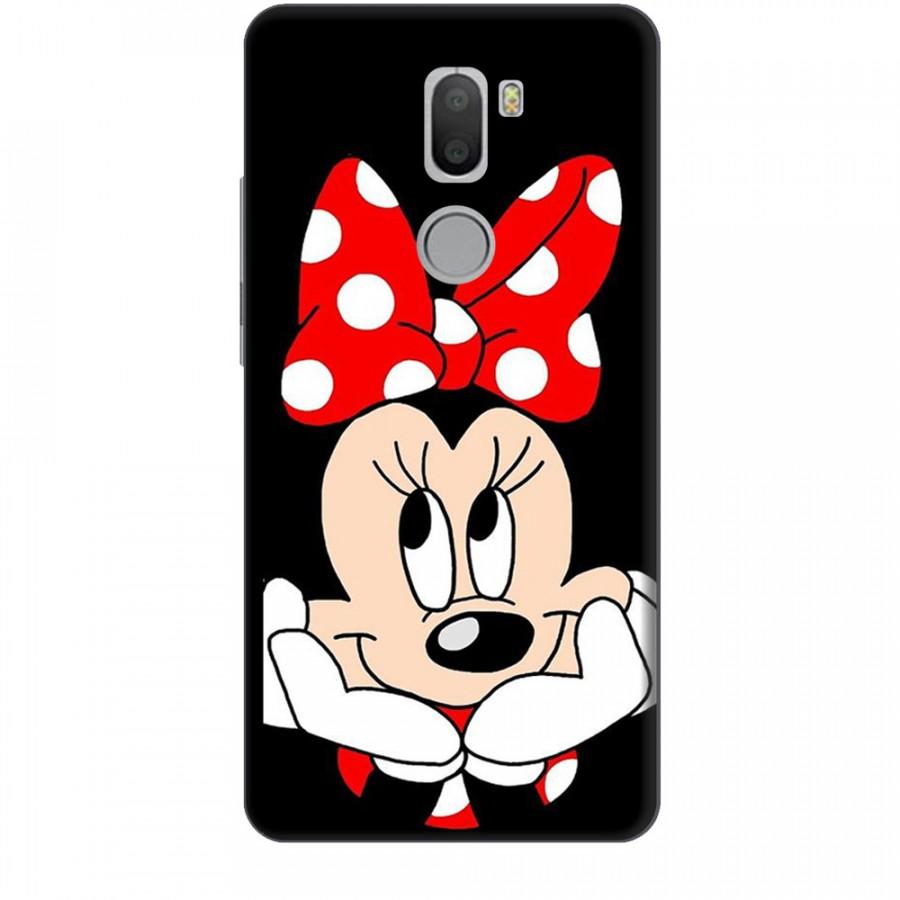 Ốp lưng dành cho điện thoại XIAOMI MI 5 PLUS Mickey Làm Duyên