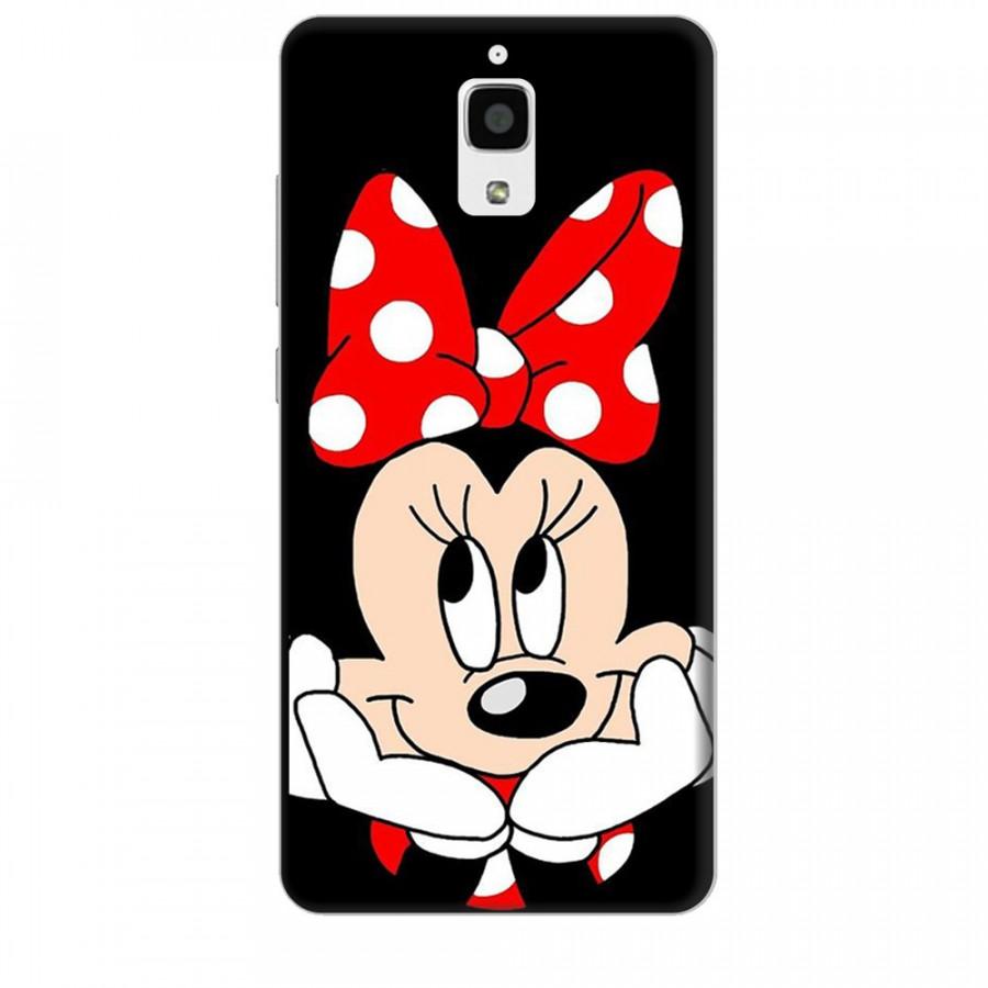 Ốp lưng dành cho điện thoại XIAOMI MI 4 Mickey Làm Duyên