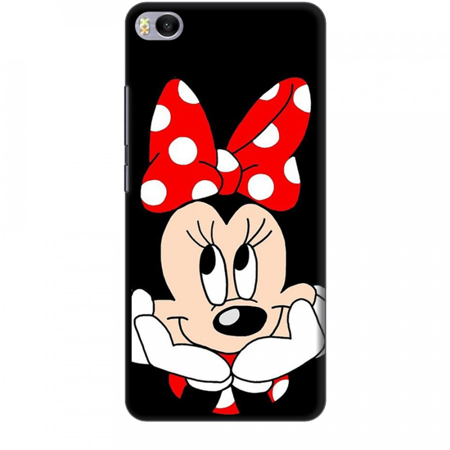 Ốp lưng dành cho điện thoại XIAOMI MI 5S Mickey Làm Duyên