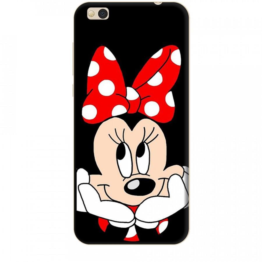 Ốp lưng dành cho điện thoại XIAOMI MI 5C Mickey Làm Duyên