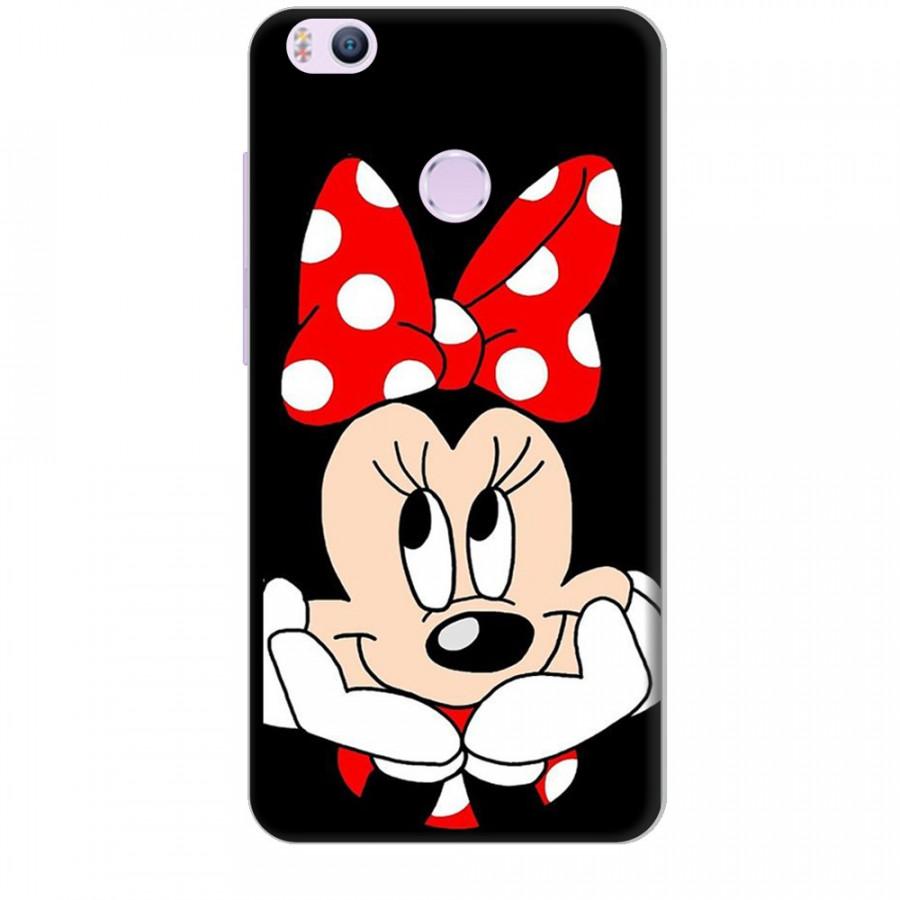 Ốp lưng dành cho điện thoại XIAOMI MI 4S Mickey Làm Duyên