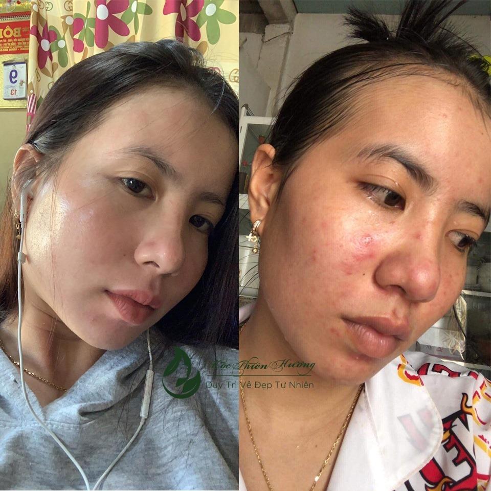 Serum 100ml Đánh Bay Mụn Thâm Nám Tàn Nhang Lâu Năm - Mộc Thiên Hương (Herbal Anti Acne Serum)