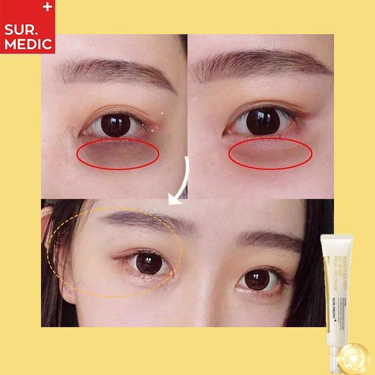 Kem Giảm Thâm Mắt Xoá Mờ Nếp Nhăn SURMEDIC Perfection 100tm All In One Facial Eye Cream 35ml
