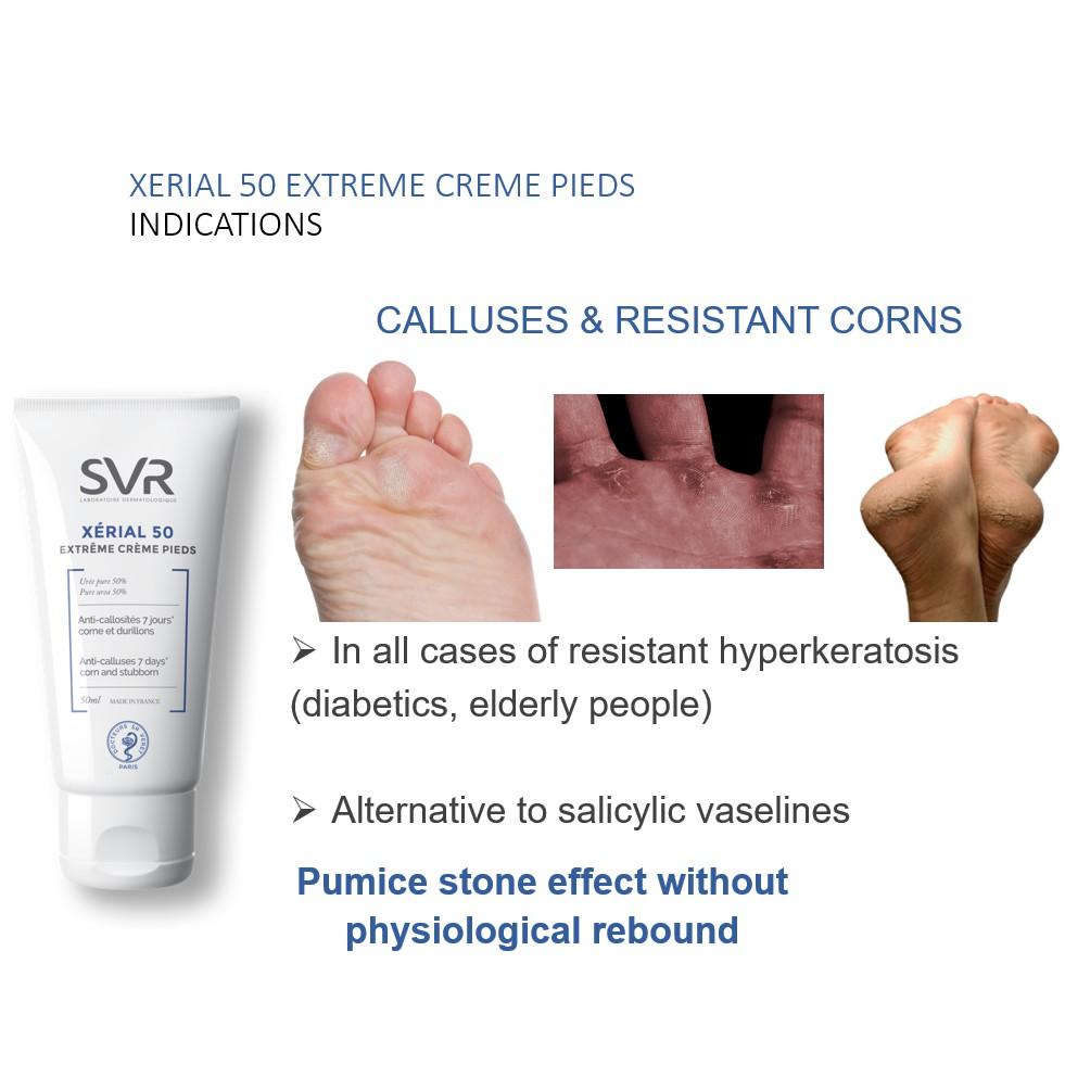 Kem dưỡng da làm giảm vết chai ở bàn chân, bàn tay và khuỷu tay SVR XERIAL 50 Extreme Creme Pieds 50ml + Tặng Kèm 1 Băng Đô Tai Mèo ( Màu Ngẫu Nhiên)