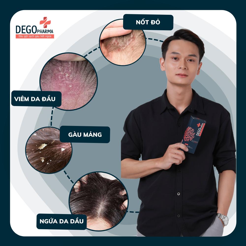 Combo 2 dầu gội sạch gàu hết ngứa Dego Pharma chiết xuất hoàn toàn từ thiên nhiên cải thiện tình trạng vảy nấm (80ml)