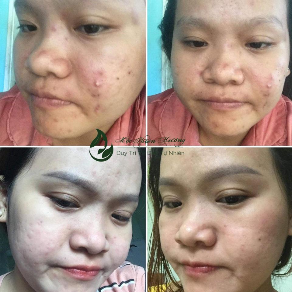Serum 50ml Đánh Bay Mụn Thâm Nám Lâu Năm - Mộc Thiên Hương (Herbal Anti Acne Serum)