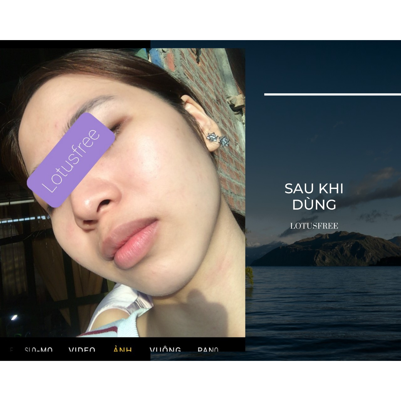 Iris Serum 30 ml Sản phẩm dưỡng trắng hỗ trợ phục hồi da phù hợp cho da mụn.