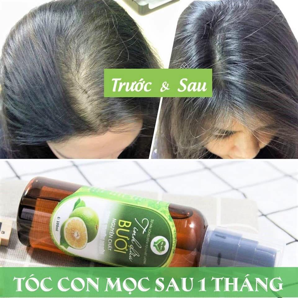 TINH DẦU BƯỞI NGUYÊN CHẤT MẸ KEN- 100 ML ( Kích thích mọc tóc, giảm rụng tóc, suôn mượt)