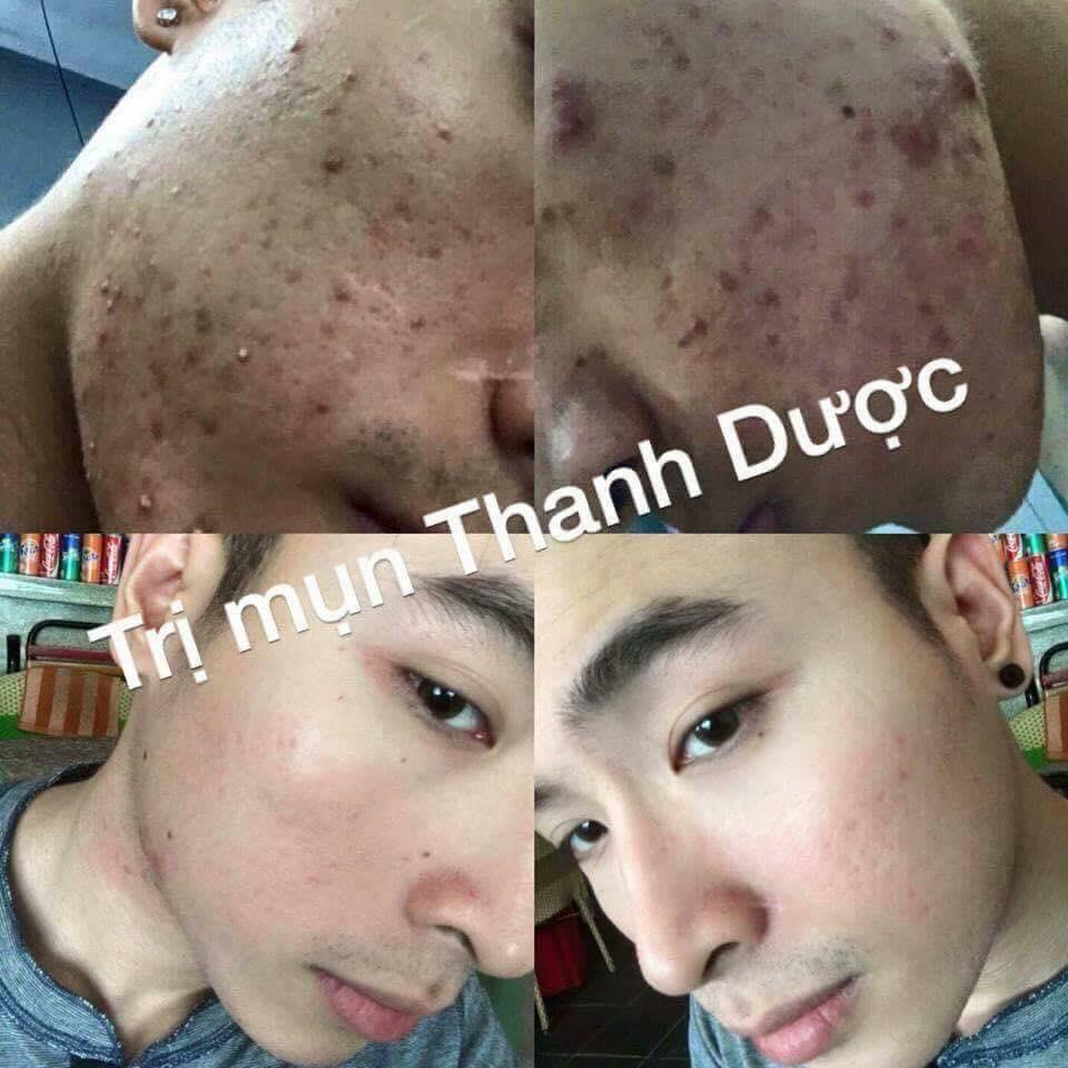 Dung Dịch Ngừa Mụn, Nám, Tàn Nhang, Sẹo Rỗ Thanh Trang - 50ml