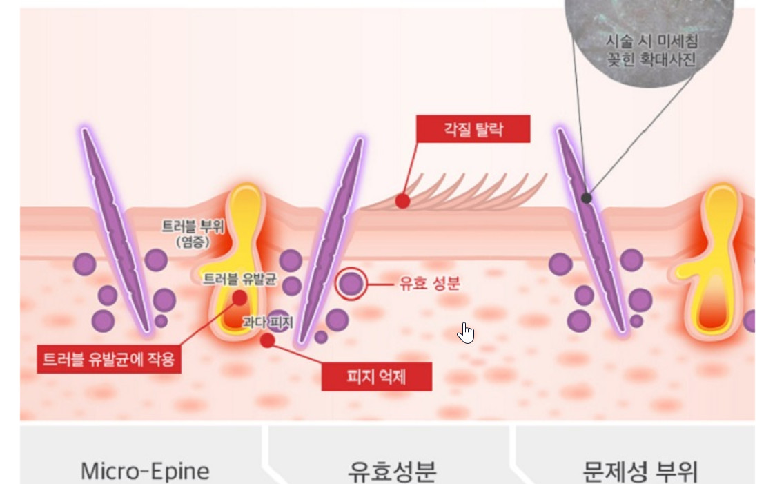 Siêu Vi Kim Lafine Bio Fillertox Ampoule