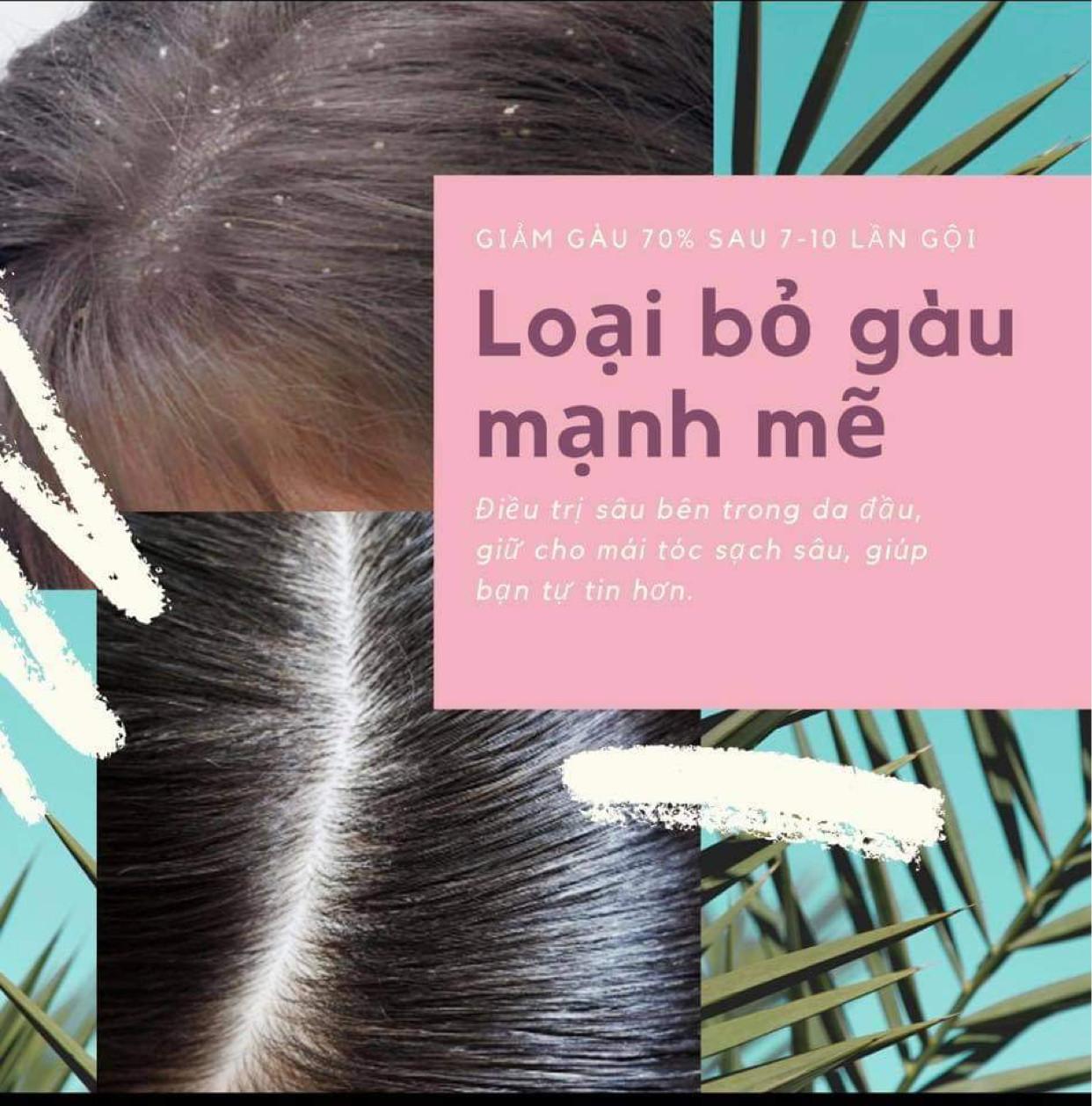 Tinh Chất Gội Đầu Thảo Mộc MẸ KEN 500ml Kích thích mọc tóc, giảm gãy rụng, giảm gàu, giảm nấm ngứa - tặng kèm 1 khăn tắm