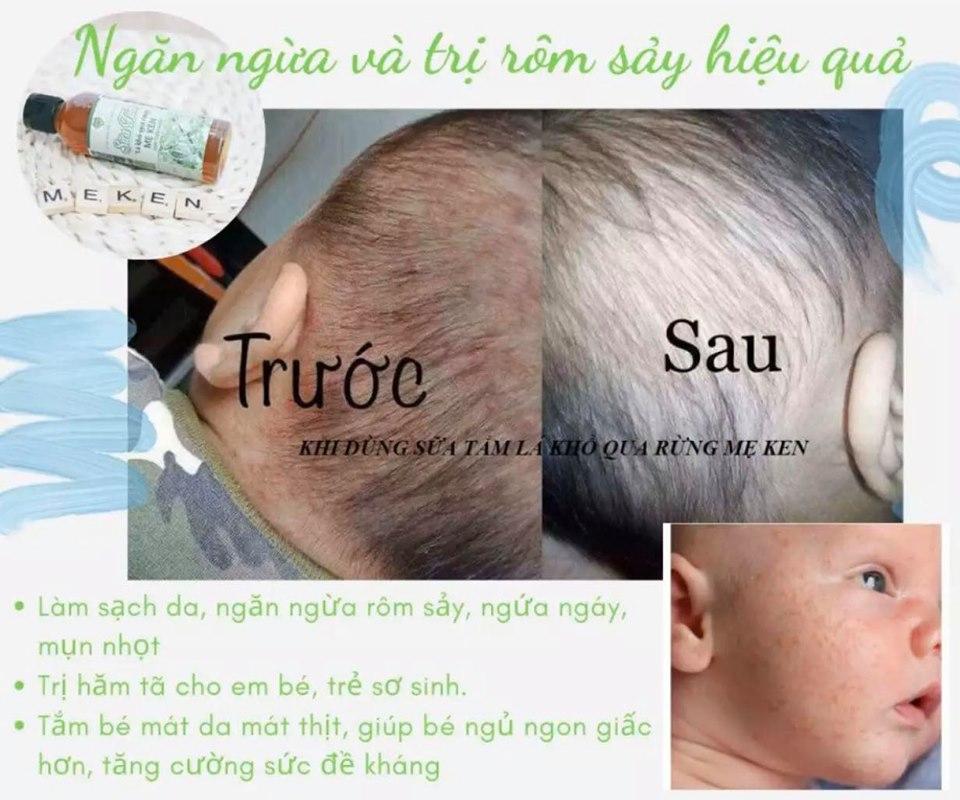 SỮA TẮM LÁ KHỔ QUA RỪNG MẸ KEN -100ML (hỗ trợ Trị rôm sẩy cho bé ,hăm tả, ngứa da )