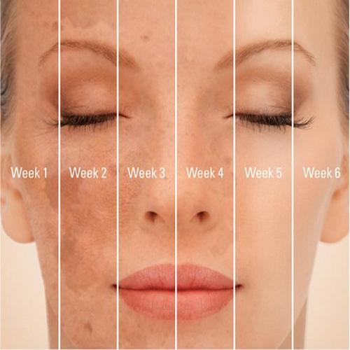 Kem Giảm Nám Trắng Da Chống Lão Hóa SkinMD Pure Whitenol Intensive Cream Hàn Quốc 15ml