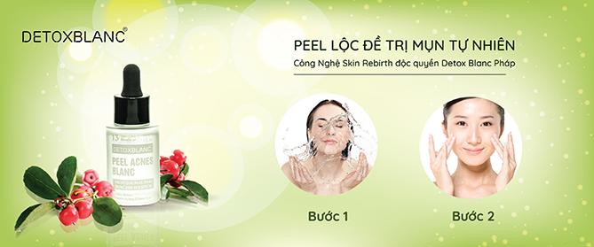 Peel Acnes Blanc Thương Hiệu Detox Blanc (Pháp) – Giúp Ngừa Mụn, Giảm Mụn Và Làm Trắng Da Hiệu Quả 4