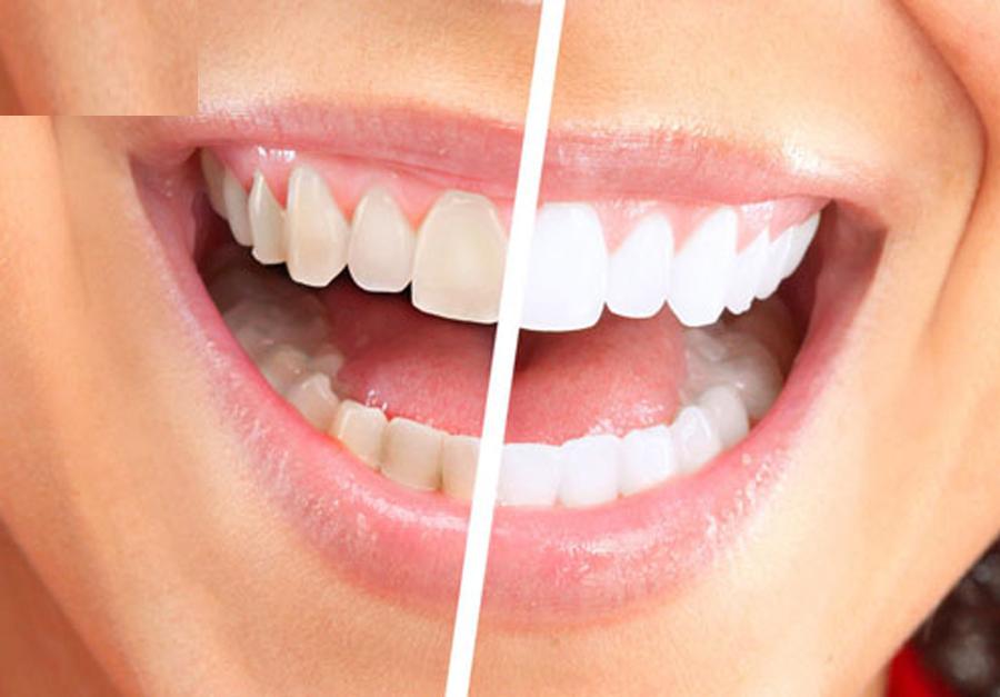 Bột đánh răng tẩy trắng Eucryl