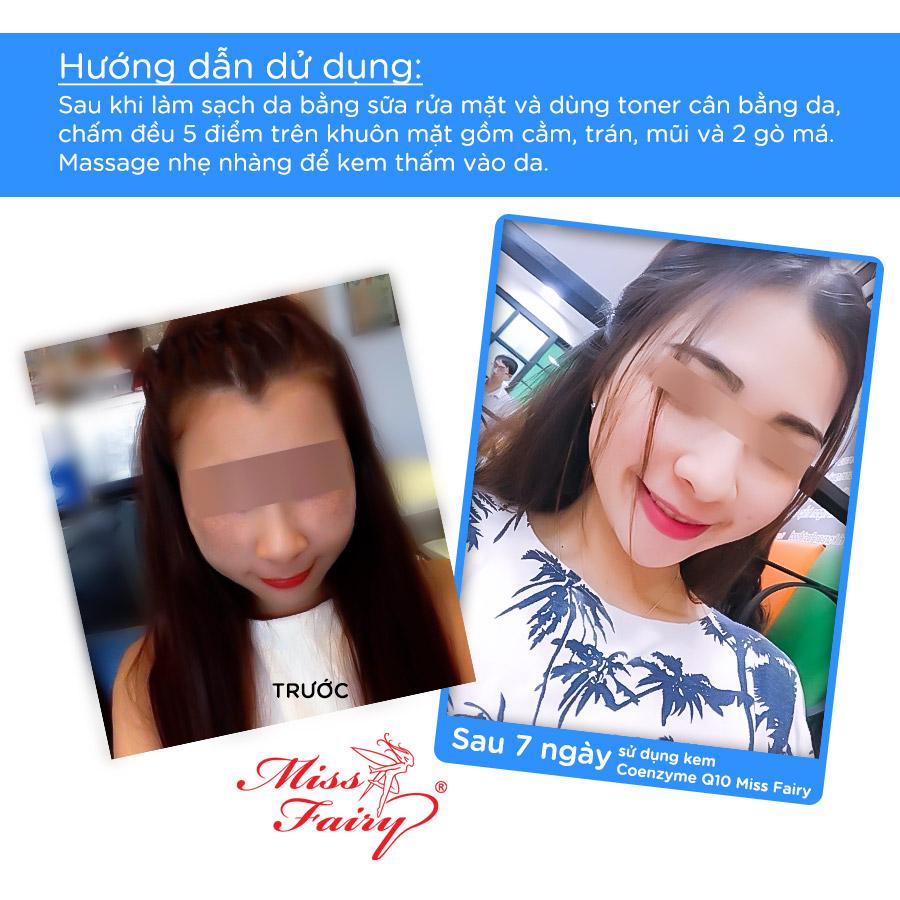 Kem dưỡng trắng Da Tinh Chất Coenzyme - Q10 Miss Fairy (15g)