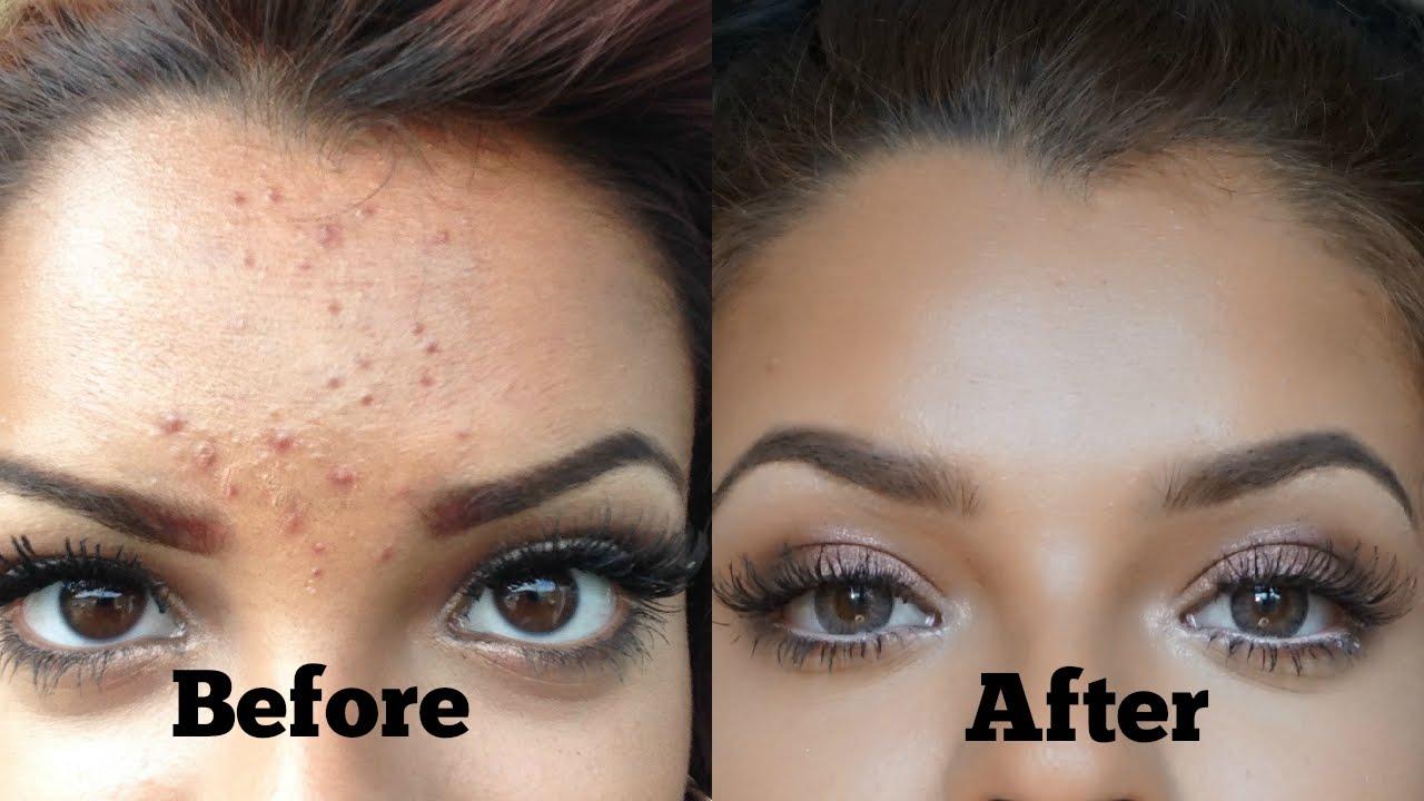 Kết quả hình ảnh cho Gel Chấm Mụn Cấp Tốc T-Zone Skincare Spot Zapping Gel 8ml sendo