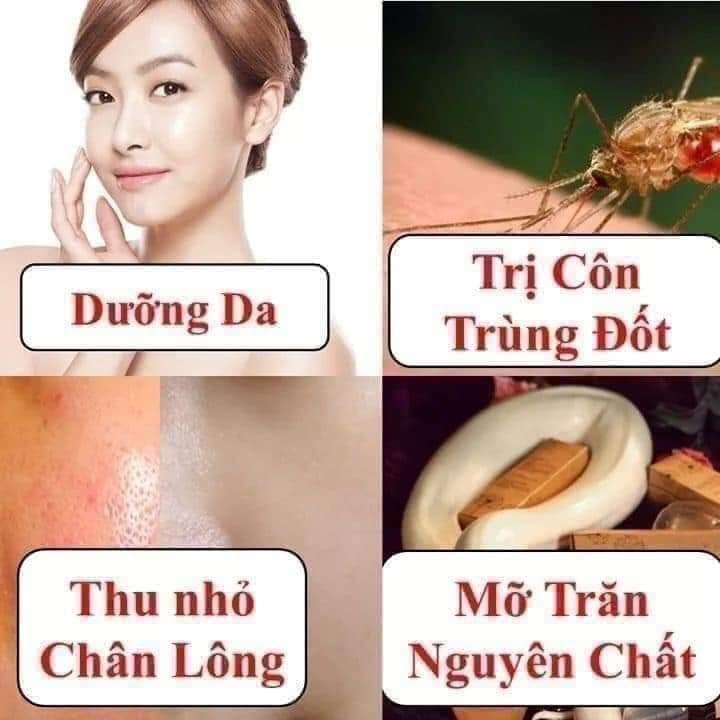 Mỡ Trăn N'store Nguyên Chất Triệt Lông Vĩnh Viễn, Giảm Bỏng Da, Dưỡng Da, Ngăn Ngừa Rạn Nứt Da (1 Chai 100ML)