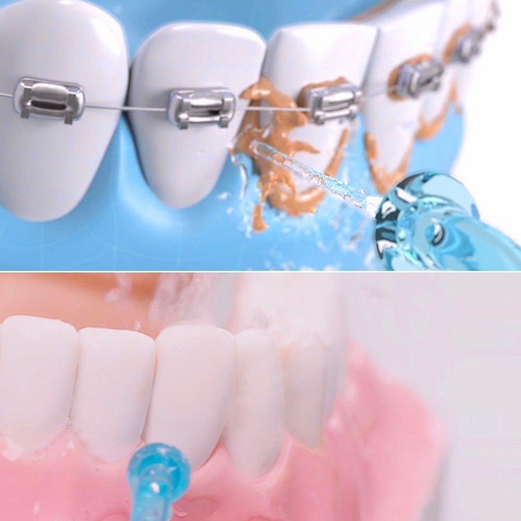 Xiaomi Soocas Oral Irrigator W3 Portable Water Dental Flosser Water Jet Cleaning Tooth Toothpick Mouthpiece Denture
