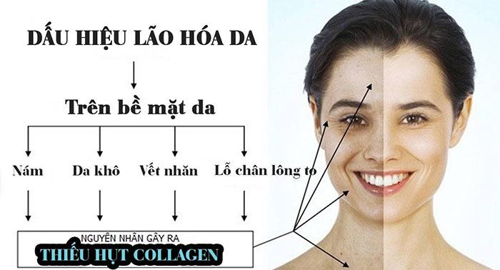 Tình trạng da lão hóa nhanh chóng khi thiếu hụt Collagen