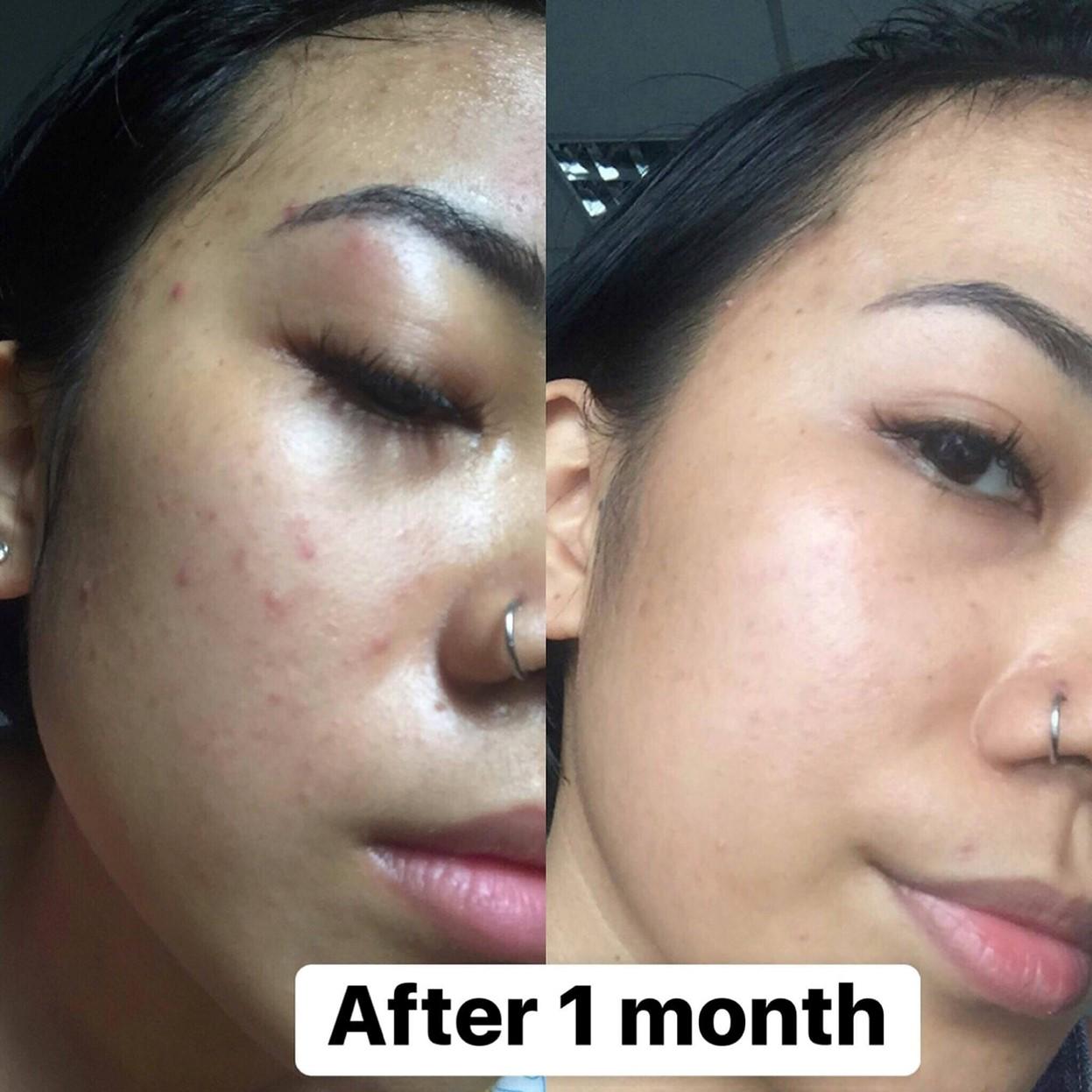 Gel Làm Dịu Da Mụn, Chống Thâm, Se Lỗ Chân Lông T-Zone Charcoal Night Treatment 8ml 4