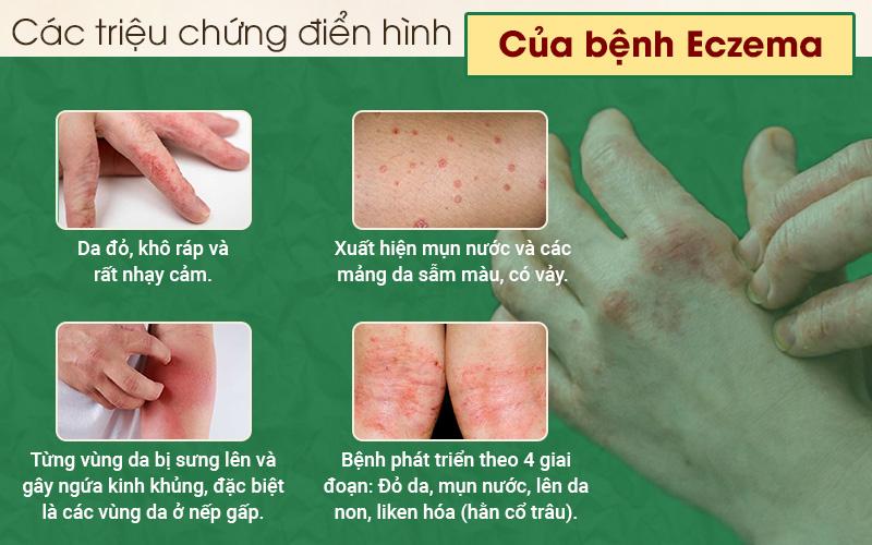 các triệu chứng của bệnh Eczema