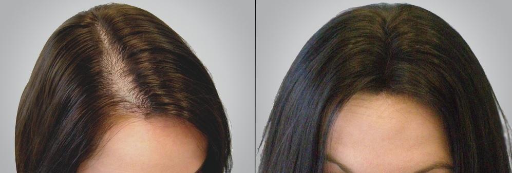 Trước và sau khi sử dụng trong 1 tháng.